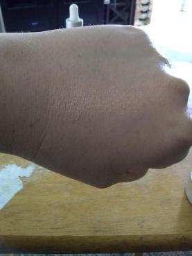 skin6